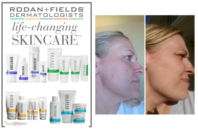 Rodan & Fields – Life Changing Skin Care That I Love
